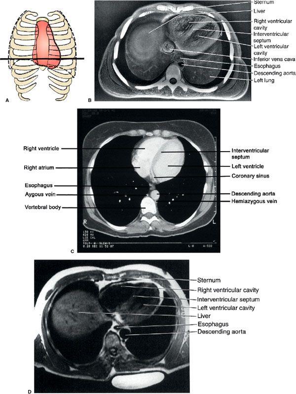 3 Chest | Radiology Key
