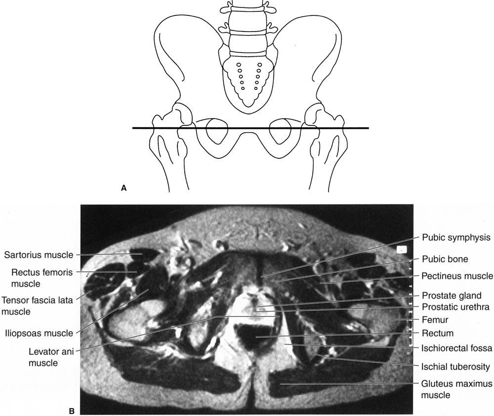Abdomen | Radiology Key