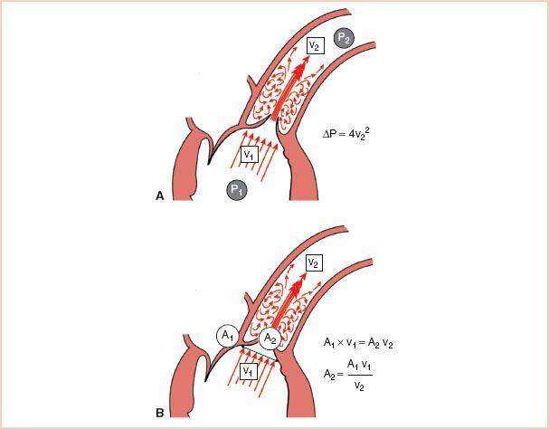 simplified bernoulli equation. a: bernoulli equation. the simplified equation states that pressure drop (p2 − p1 \u003d Δ 4p) across a stenotic orifice is u