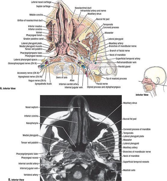 Nasopharynx   Radiolog...
