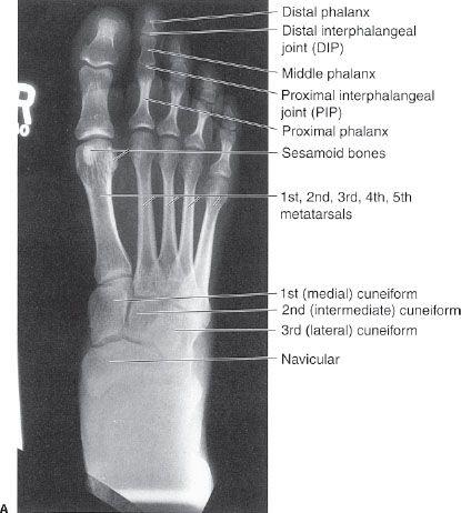 6 musculoskeletal system radiology key