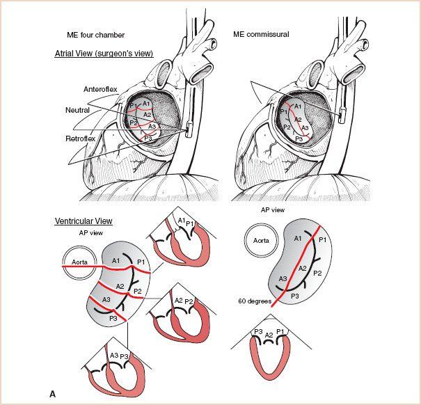 Tee mitral valve anatomy 5213310 - follow4more.info