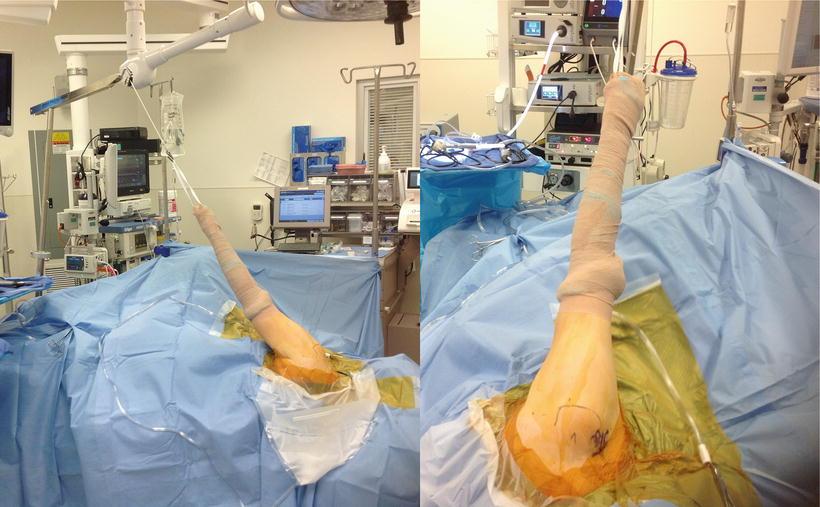 Diagnostic Shoulder Arthroscopy And Arthroscopic Anatomy