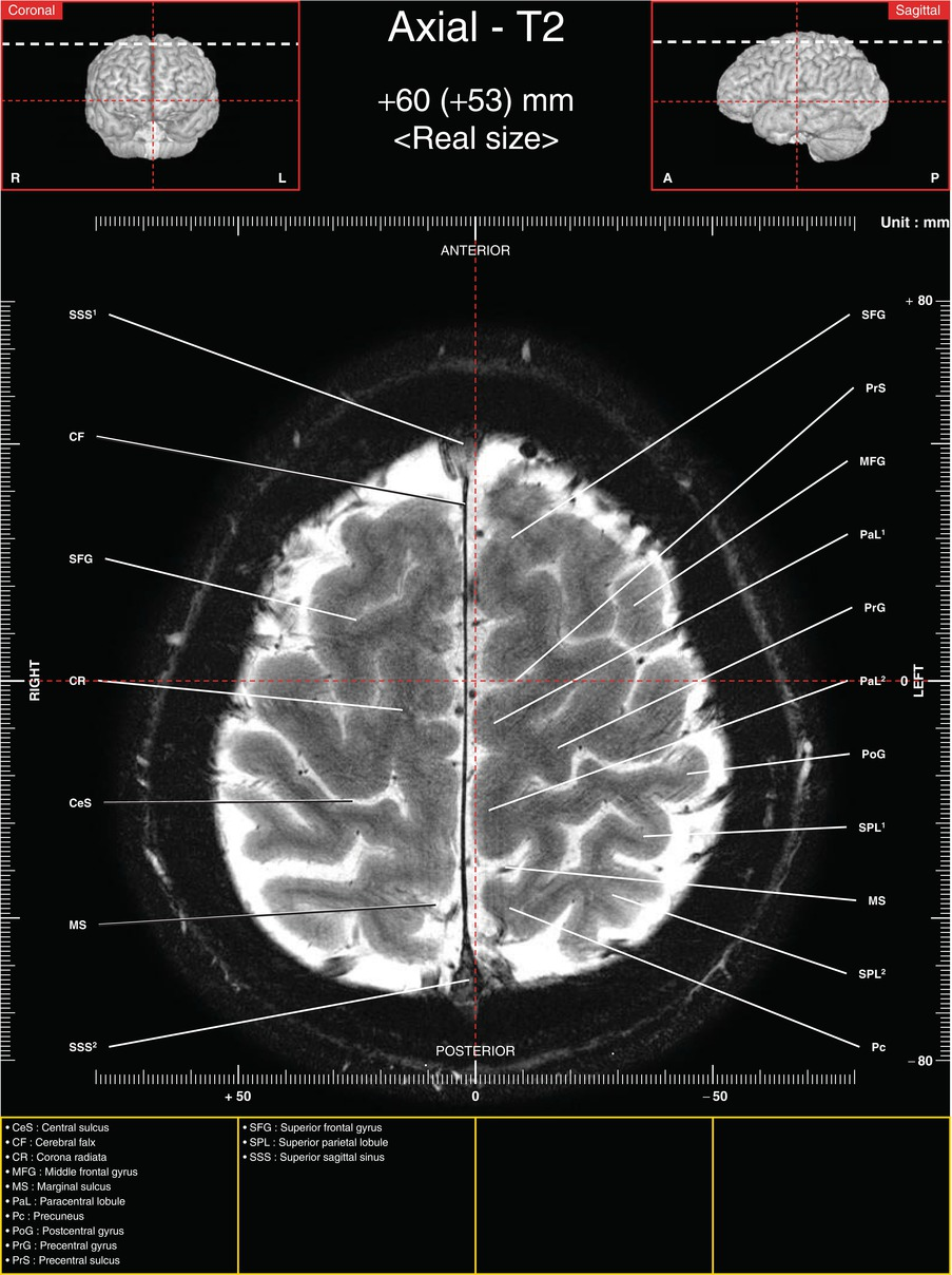 Axial Images of Tractography and Corresponding In-Vivo 7.0-T MRI ...