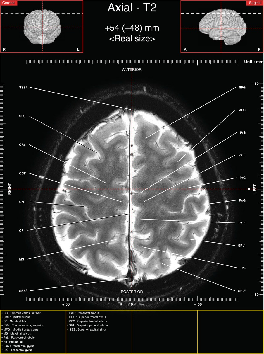 Axial Images Of Tractography And Corresponding In Vivo 70 T Mri