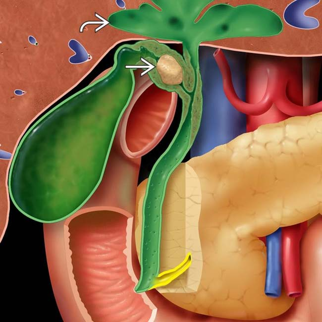 Mirizzi Syndrome