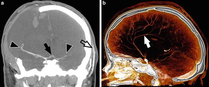 Brain death imaging radiology key a978 1 4614 9029 626fig7htmlg ccuart Images