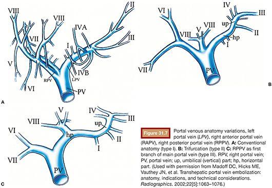 Portal Vein Embolization Radiology Key