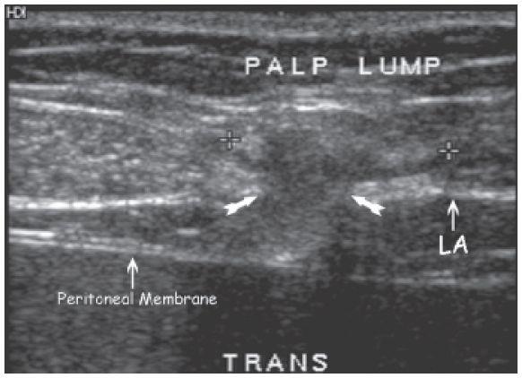 ultrasound of abdominal wall masses radiology key