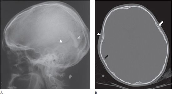 Linear Skull Fracture : Axial skeletal trauma radiology key