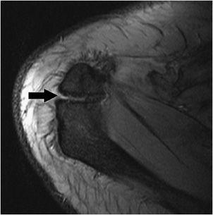 Shoulder Mri Radiology Key