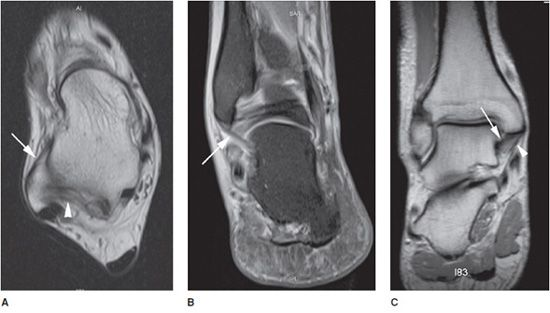 Ankle Mri Radiology Key