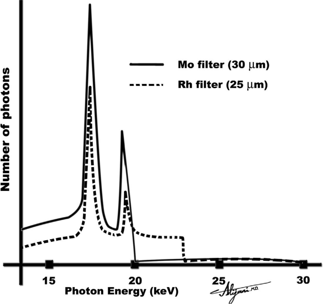 Projection radiography ii radiology key figure 41 x ray spectra from a molybdenum target at 30 kv showing the effect of adding a molybdenum or rhodium filter xflitez Gallery