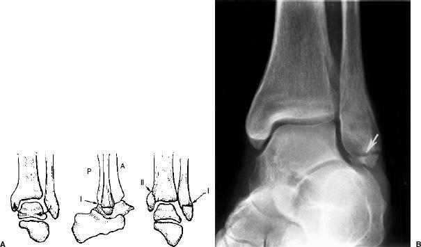 The Foot And Ankle Radiology Key
