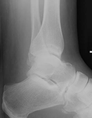 Lower Leg and Ankle   Radiology Key
