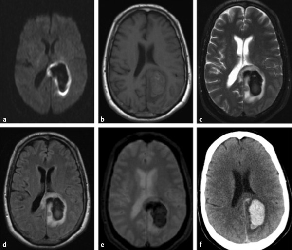 Diffusion Weighted Imaging in Hemorrhage | Radiology Key