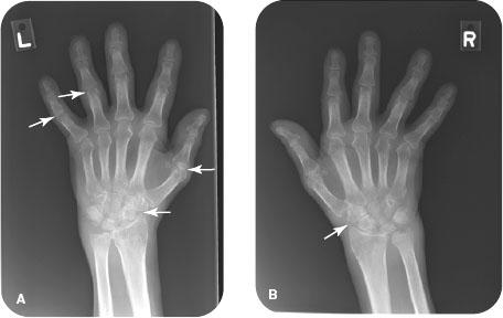 rheumatoid arthritis radiology