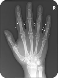 fájdalom jelentkezett a térdízület injekciójának beadása után terbinafin fájó ízületek
