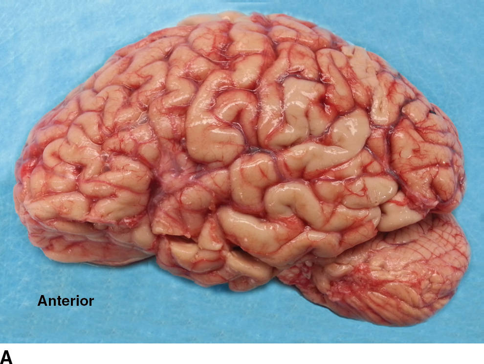 Normal Anatomy of the Brain: What You Need to Know | Radiology Key