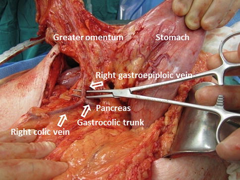 Gastrocolic trunk anatomy