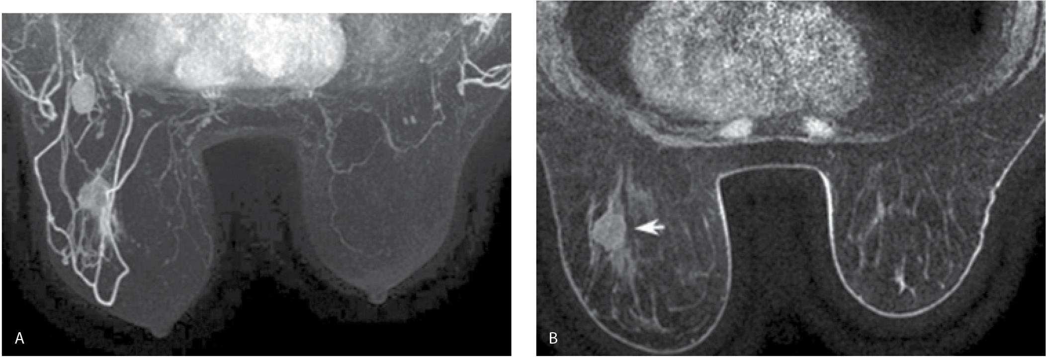 Breast Magnetic Resonance Imaging Radiology Key