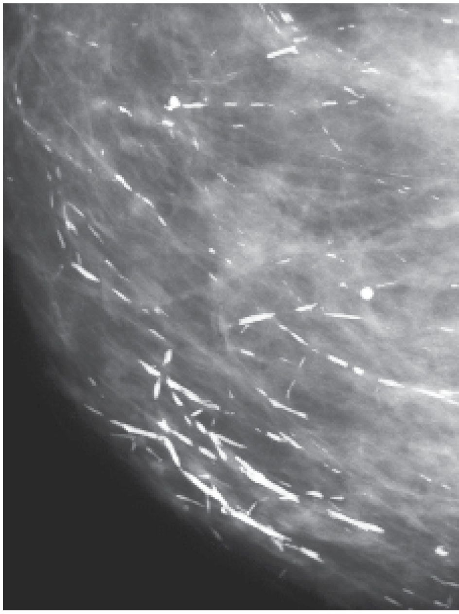 Breast calcifications pictures