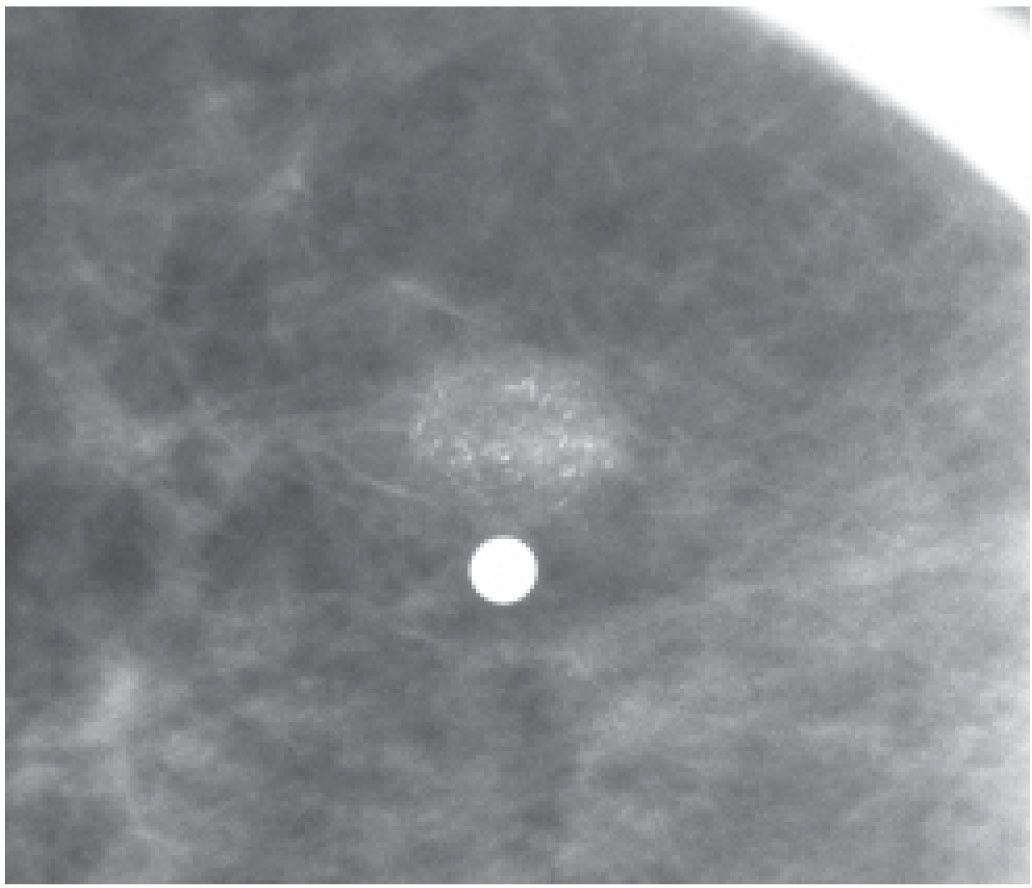 Rare calcifications in breasts