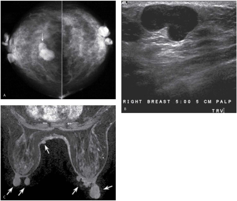 Neurofibromatosis and breast mass