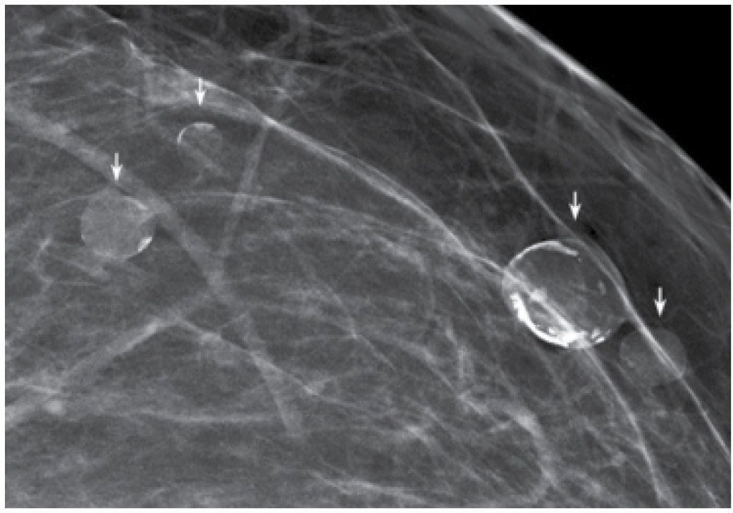 Evaluation and imaging features of benign breast masses for Cyst with mural nodule