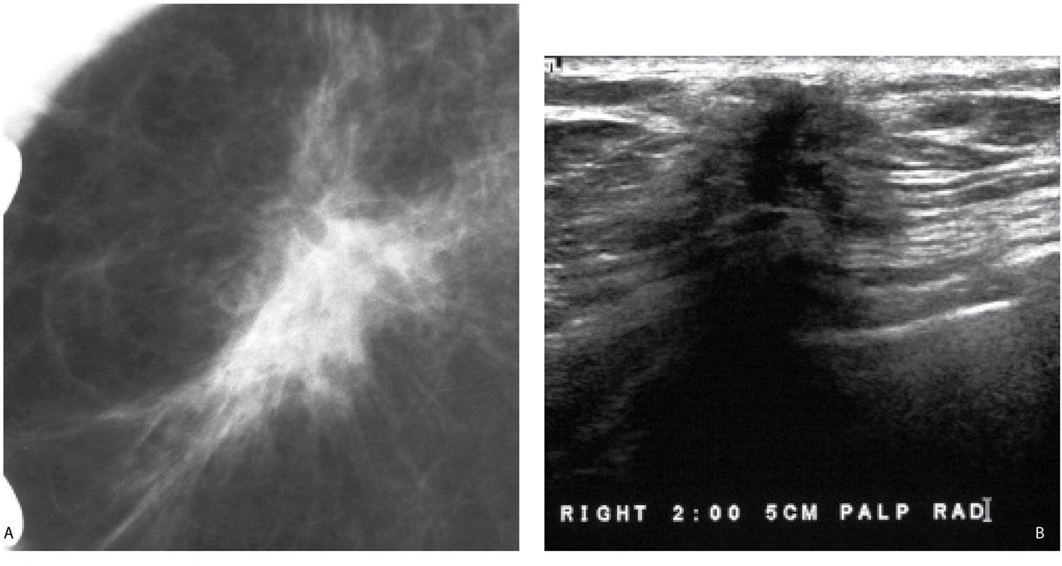 Evaluation and Imaging Features of Benign Breast Masses   Radiology Key