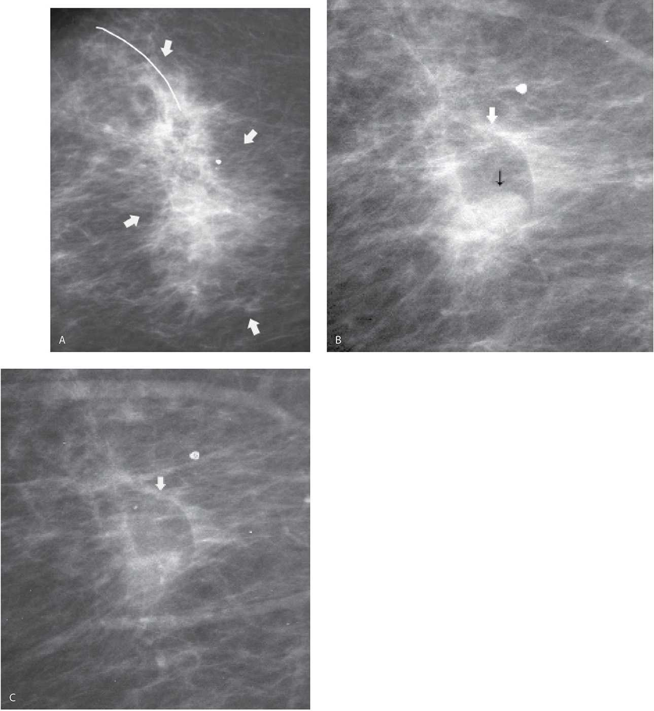 Evaluation and imaging features of benign breast masses for Echogenic mural nodule