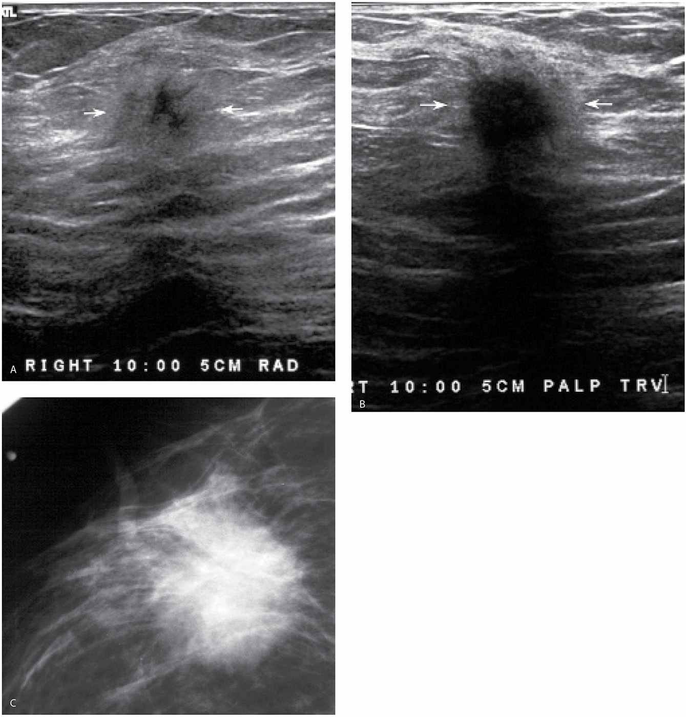 Evaluation and Imaging Features of Benign Breast Masses