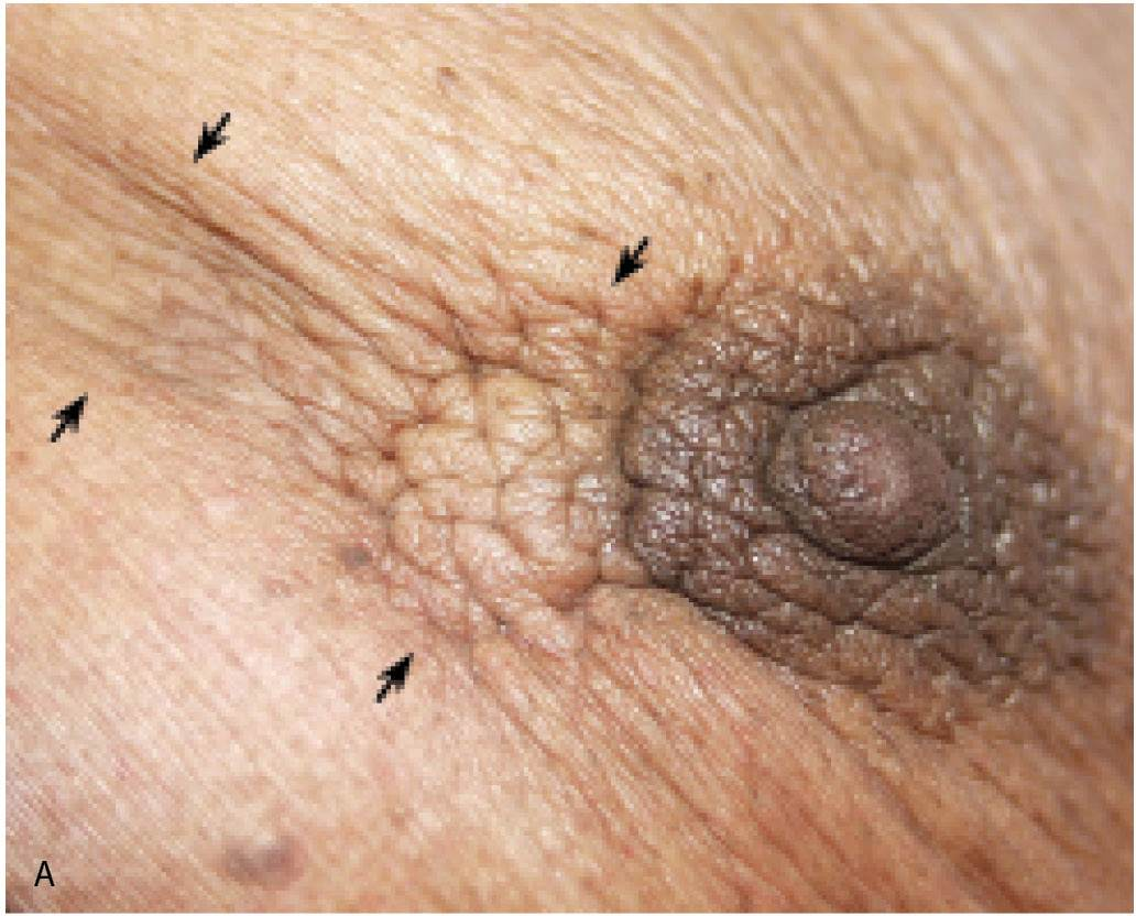 Breast micro calcications nipple skin