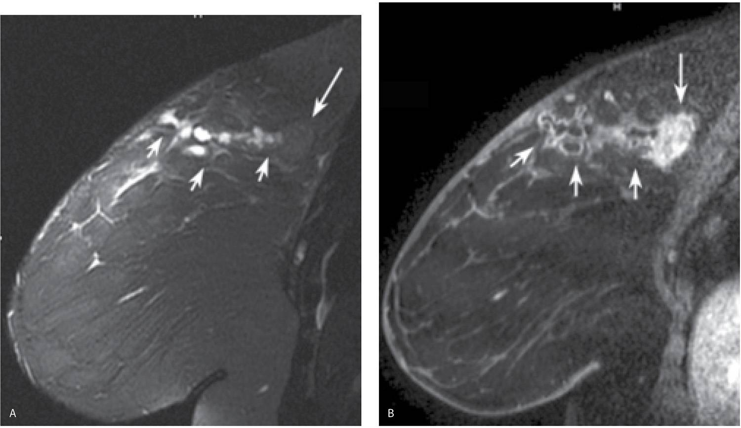 Although not common, hematomas can occur following imaging-guided breast  biopsies. These typically resolve spontaneously. Rarely, surgical  evacuation is ...