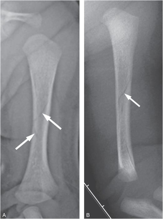 Upper extremity trauma | Radiology Key
