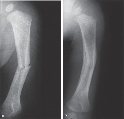 Upper Extremity Trauma Radiology Key
