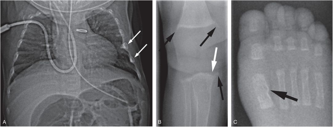 Differential diagnosis II: disorders of calcium and ...