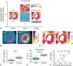 Cardiovascular Magnetic Resonance Assessment of Myocardial Oxygenation