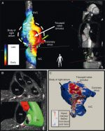 Pediatric Interventional Cardiovascular Magnetic Resonance