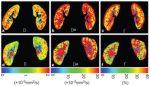 IVIM MRI in the Kidney