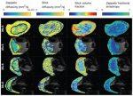 IVIM MRI of the Placenta