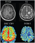Clinical Applications of IVIM MRI to the Nervous System