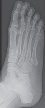 Female Foot