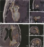 2 Response Assessment in Neuro-oncology