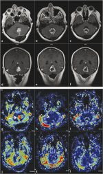 4 Perfusion Imaging: Dynamic Susceptibility Contrast Magnetic Resonance Perfusion
