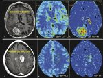 7 Perfusion Imaging: Perfusion CT