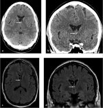 3 Asymmetry of the Lateral Ventricles