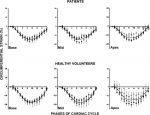 Ventricular Mechanics