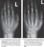 14 The Growing Skeleton of the Hand