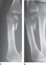 25 Metacarpal Fractures